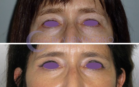 Blepharoplasty – Case 1/A