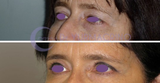 Blepharoplasty – Case 1/B