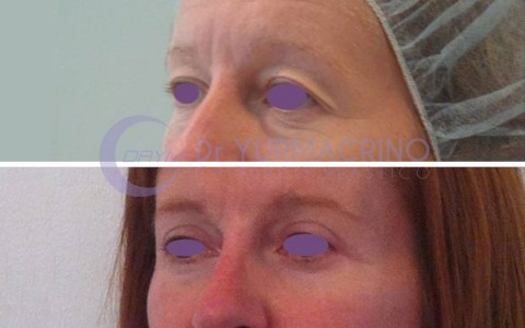 Blepharoplasty – Case 2/B