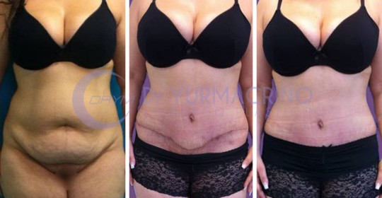 Abdominoplasty – Case 1/A