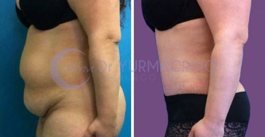 Abdominoplasty – Case 1/B