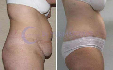 Abdominoplasty – Case 2/B