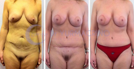 Abdominoplasty – Case 3/A