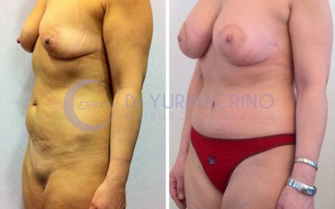 Abdominoplasty – Case 3/B