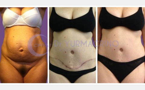 Abdominoplasty – Case 4/A