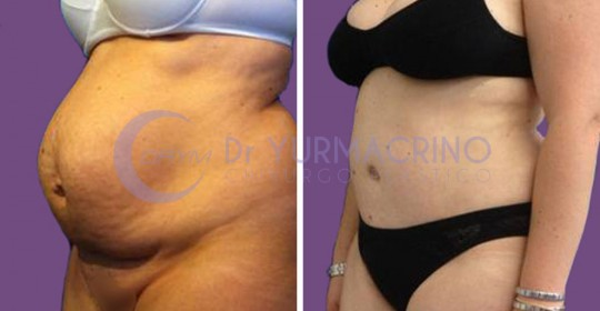 Abdominoplasty – Case 4/B