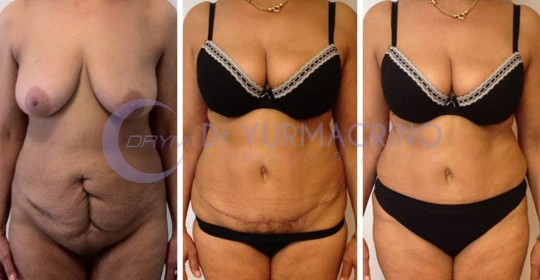 Abdominoplasty – Case 5