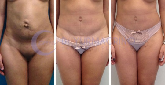 Abdominoplasty – Case 6/A