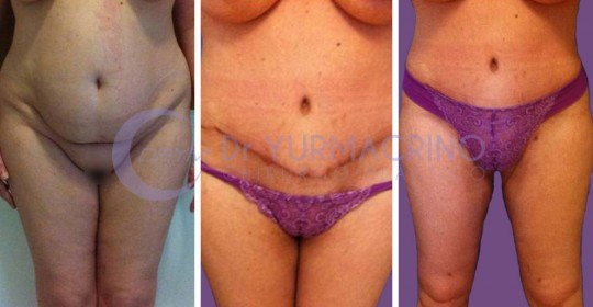 Abdominoplasty – Case 7/A