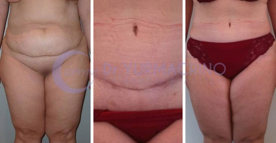 Abdominoplasty – Case 8/A