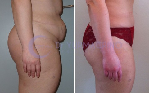 Abdominoplasty – Case 8/B