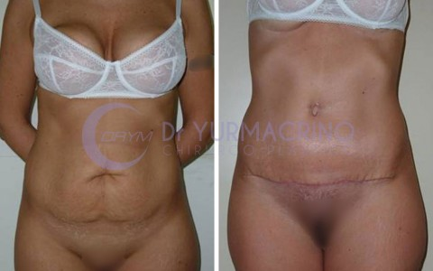 Abdominoplasty – Case 9/A