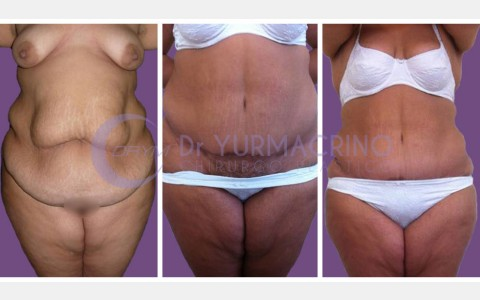 Abdominoplasty – Case 10/A