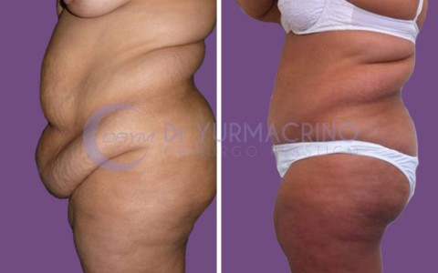Abdominoplasty – Case 10/B
