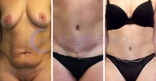 Abdominoplasty – Case 13/A