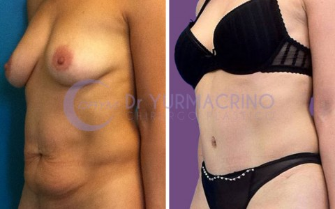 Abdominoplasty – Case 13/B
