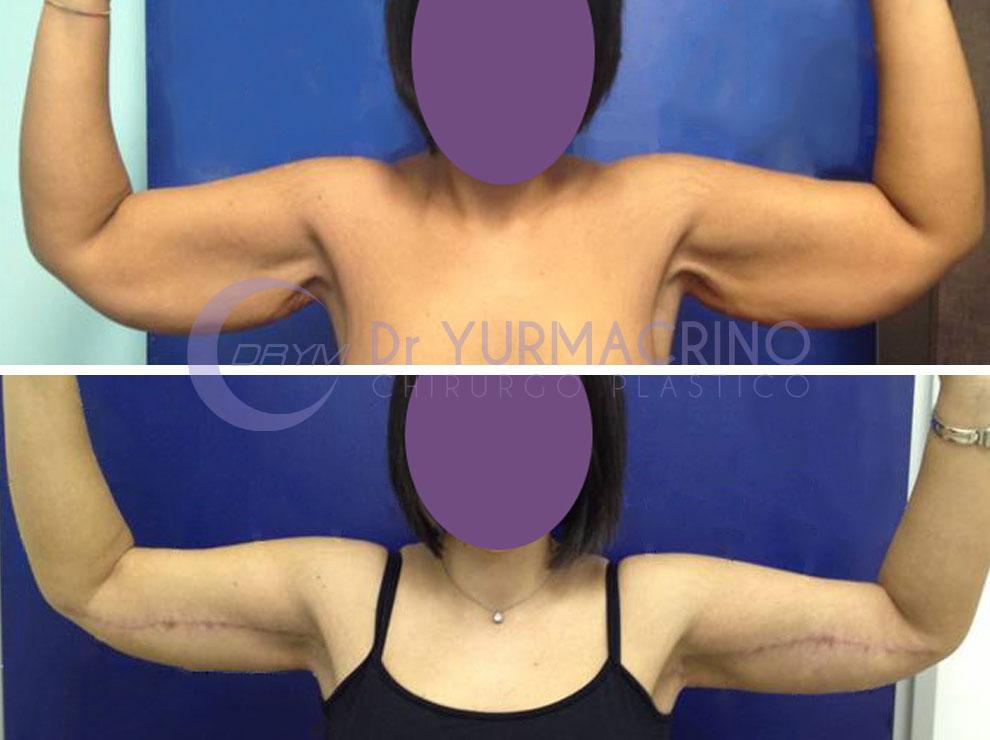 primadopo_lifting_braccia_002b