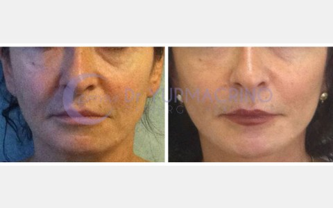 Face Lifting – Case 1/A