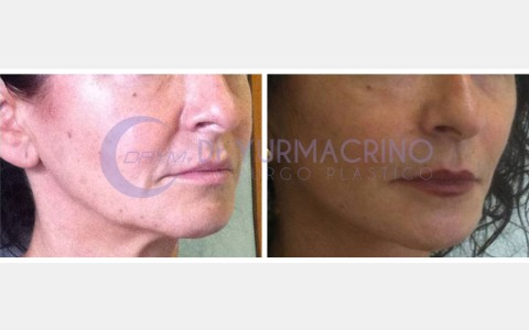 Face Lifting – Case 1/B