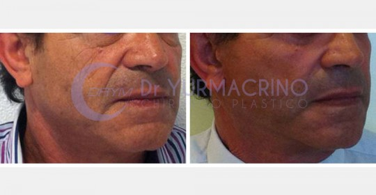 Face Lifting – Case 2/A