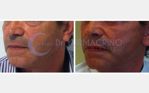 Face Lifting – Case 2/B