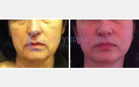 Face Lifting – Case 3/A