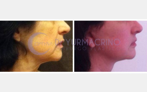 Face Lifting – Case 3/B
