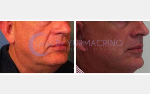 Face Lifting – Case 5/A