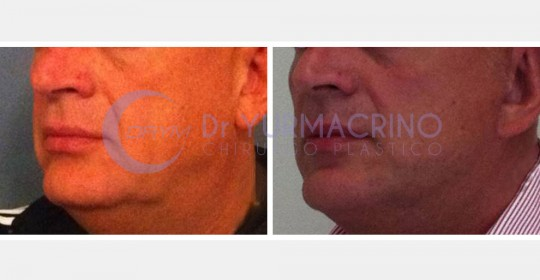 Face Lifting – Case 5/B