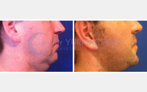 Face Lifting – Case 6