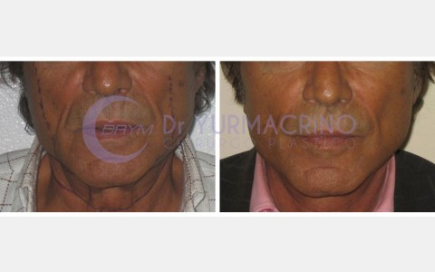 Face Lifting – Case 7/A