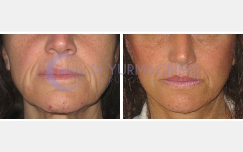 Face Lifting – Case 8/A