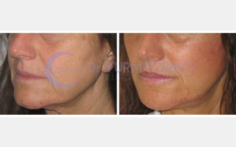 Face Lifting – Case 8/B