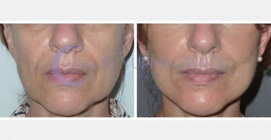 Face Lifting – Case 9/A