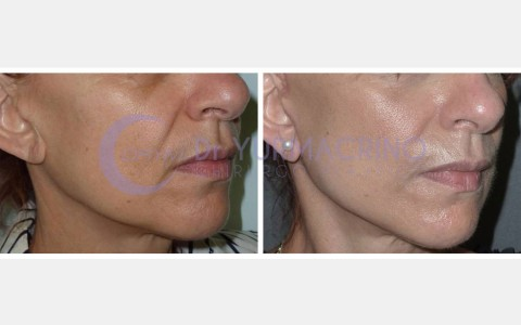 Face Lifting – Case 9/B