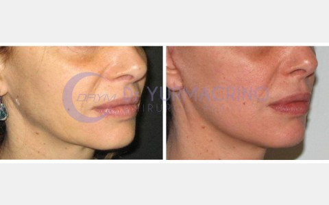 Face Lifting – Case 10