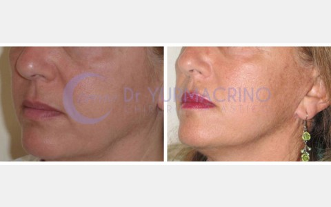 Face Lifting – Case 11
