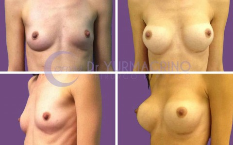 Breast Augmentation – Case 4