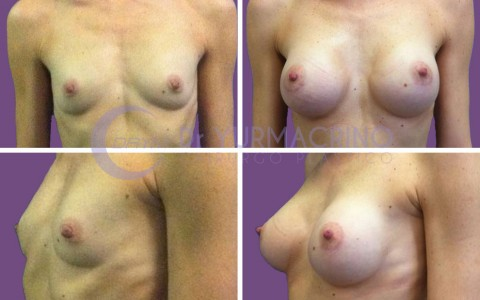 Breast Augmentation – Case 6