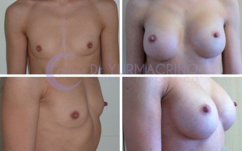 Breast Augmentation – Case 7