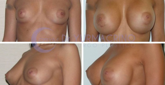 Breast Augmentation – Case 9