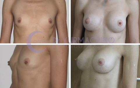 Breast Augmentation – Case 11