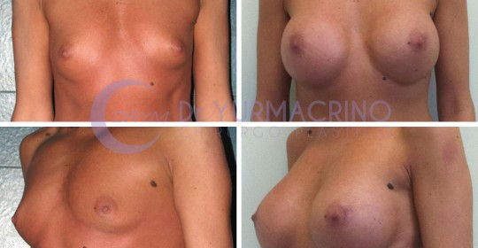 Breast Augmentation – Case 13