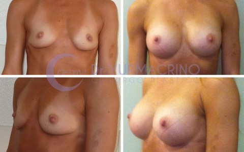 Breast Augmentation – Case 15