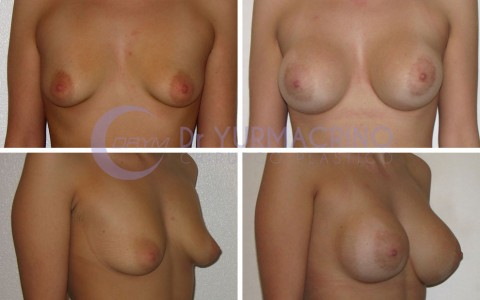Breast Augmentation – Case 19