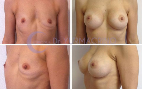 Breast Augmentation – Case 20