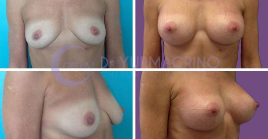Breast Augmentation – Case 21