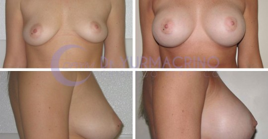 Breast Augmentation – Case 22
