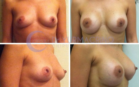 Breast Augmentation – Case 23