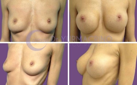 Breast Augmentation – Case 24
